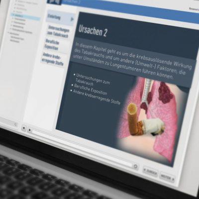 iSMK Tumoren der Lunge